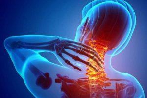 توصیه های غذایی و غیر غذایی بیماران مبتلا به دردهای سیاتیکی و مفصلی و آرتروز